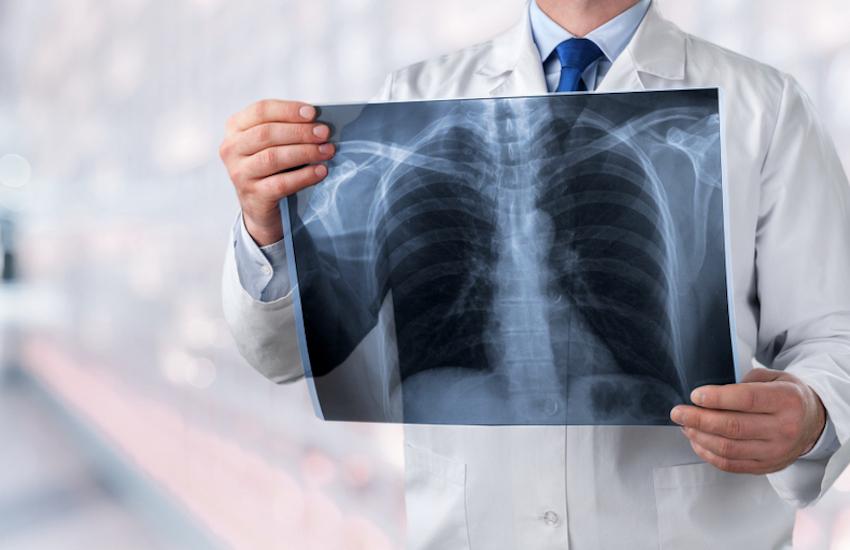 pierdere în greutate abces pulmonar