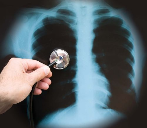suspiciune de pneumonie
