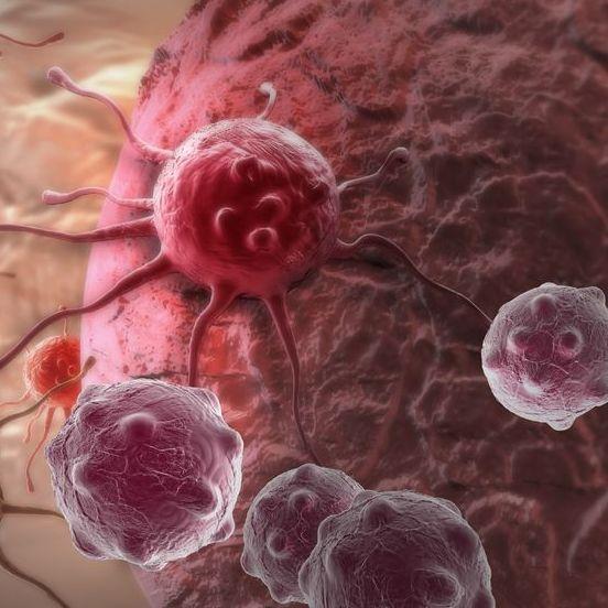 simptome cancer in corp cauzele verucilor genitale pe vagin