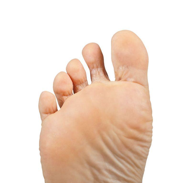 Piciorul diabetic: cum il recunosti, ingrijire, preventie, tratament | Bioclinica
