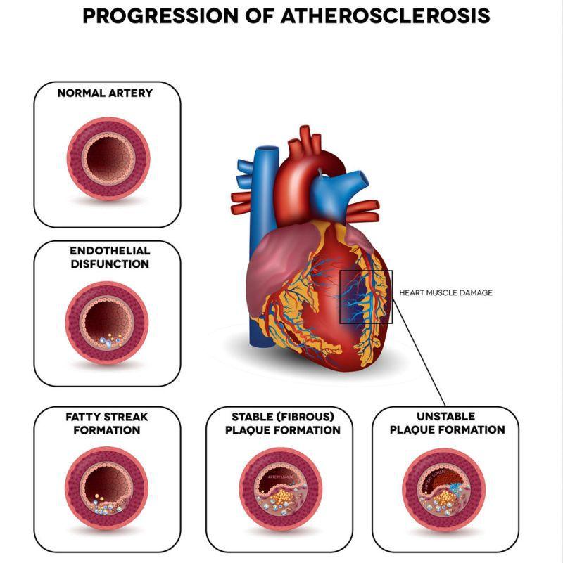 tratamentul aterosclerozei varicoză)