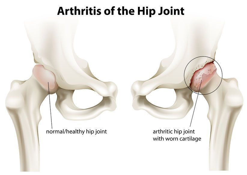 arthralgia definition