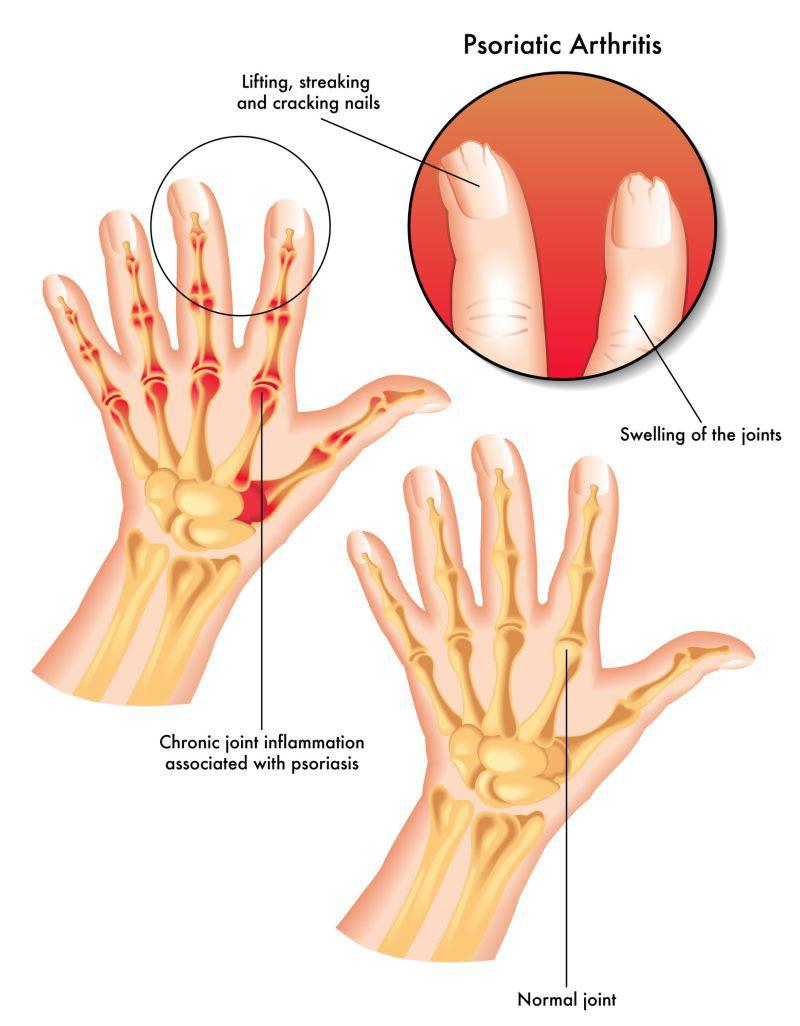 din inflamația articulară în artrita psoriazică)