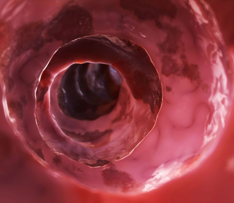 cancer de colon simptome analize)