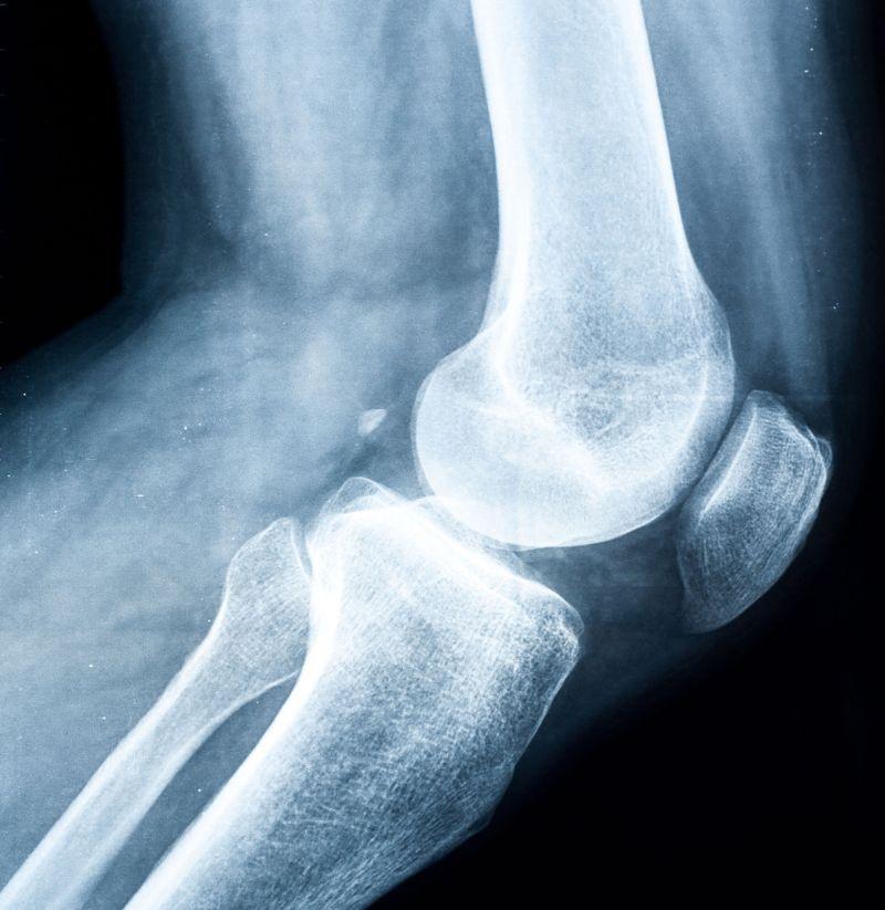 radiografie pentru dureri de genunchi medicamente care stimulează creșterea cartilajului