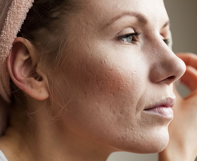 pierde cicatricile de acnee în greutate)