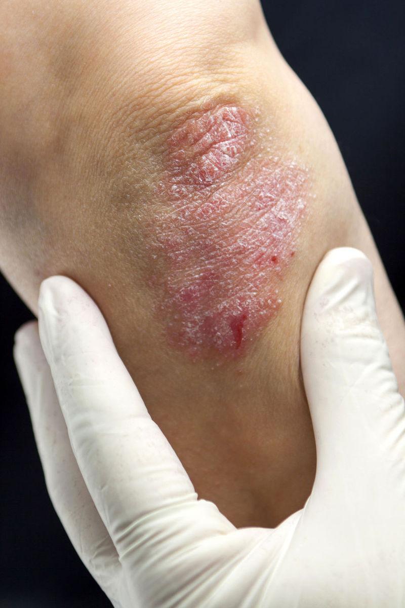 Dermatomiozita: Cauze, manifestari si tratament - Sensiblu