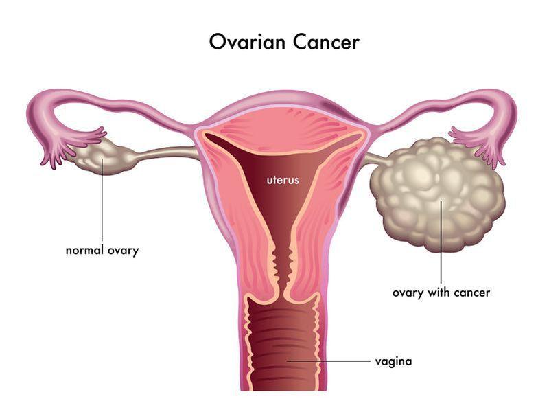 cancer feminin simptome reacții adverse antihelmintice