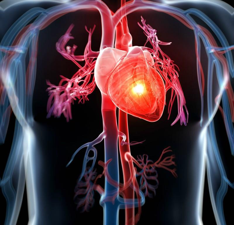 dureri articulare cu miocardită)