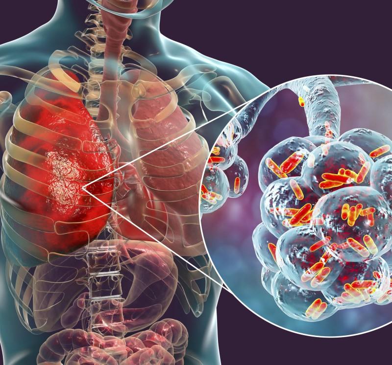 Simptomele și tratamentul varicozei