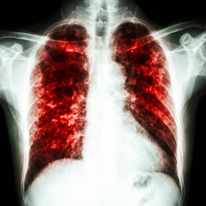 scădere în greutate cu pneumonie