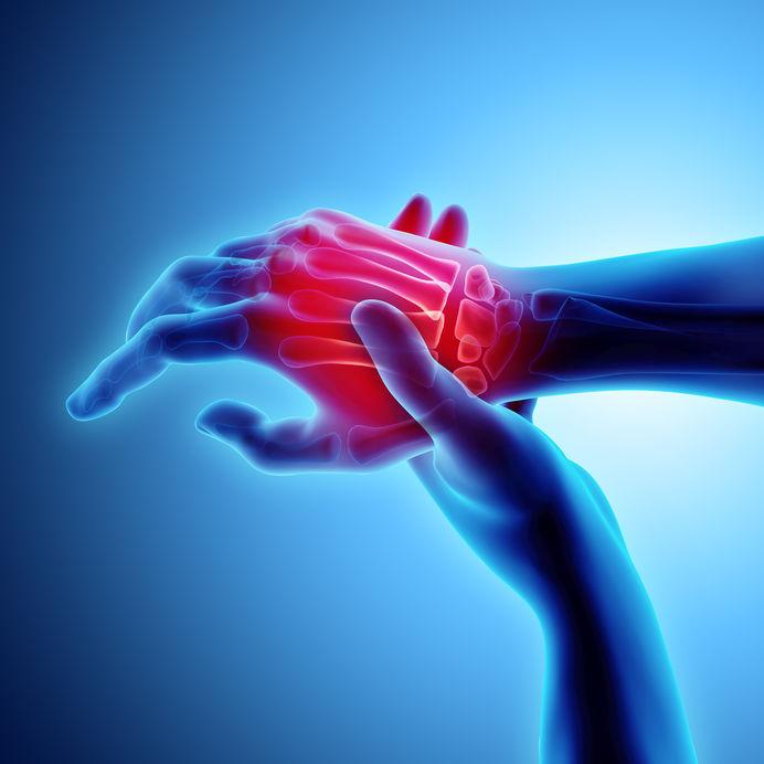 Cu ce se trateaza artrita reumatoida