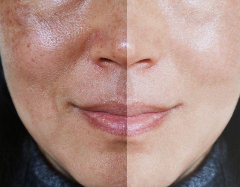 pigmentare varicose piele funcționarea cu diabet zaharat varicoză