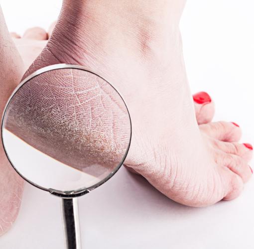 călcâiele pierd în greutate pierderea în greutate indirapuram