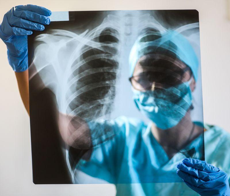pierderi în greutate reacții adverse la pneumonie