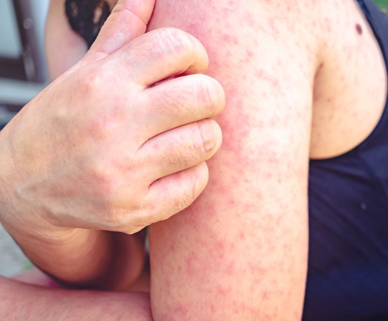 cum să nu obțineți vene varicoase în timpul sarcinii poate fi geloterapie în varicoză