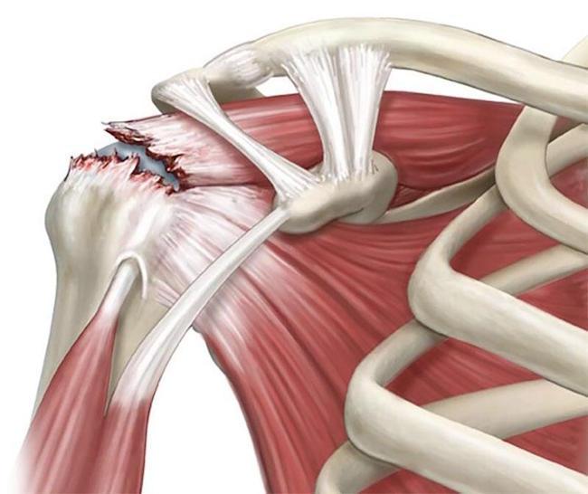 Artroza – ce este, tratament si simptome   CENTROKINETIC, Ortoped tratează articulațiile