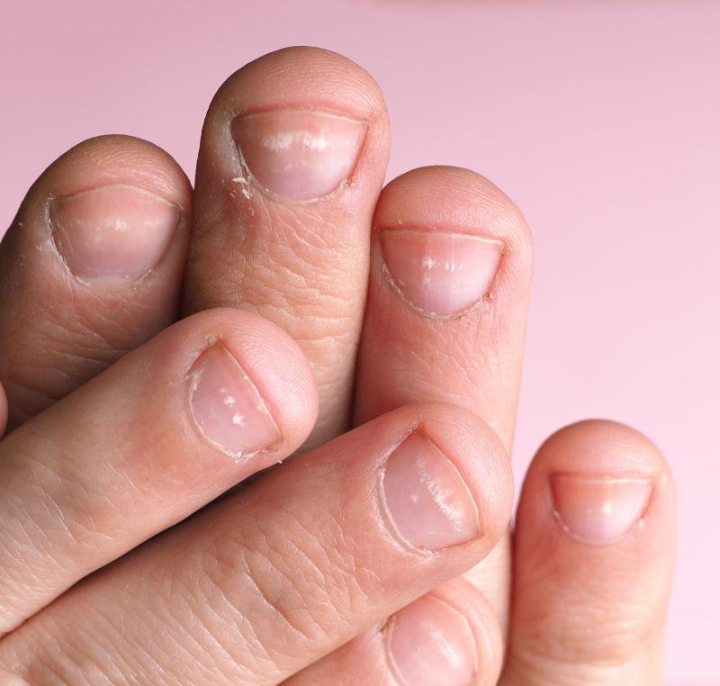 Modificări ale unghiilor - CSID: Ce se întâmplă Doctore?