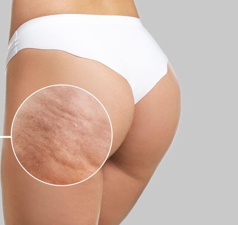 tratare subțire a celulitei corpului