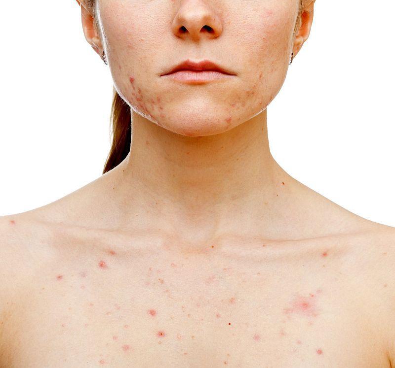 simptome de acnee