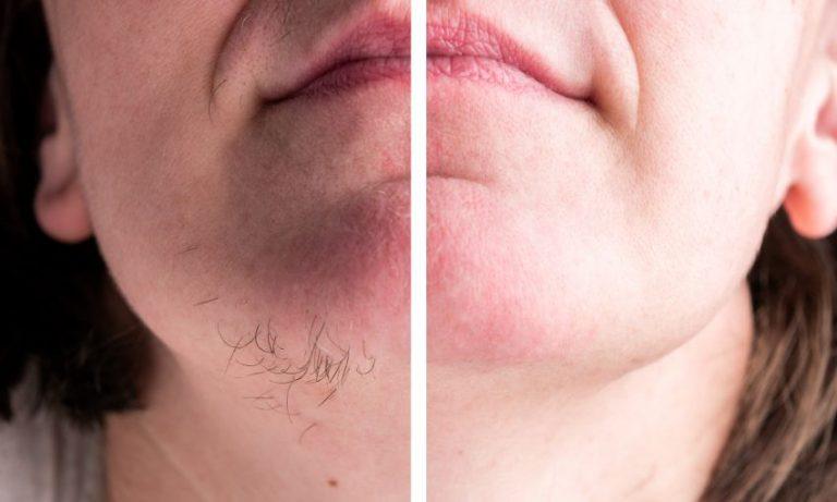 Fie de păr în barbă la femei. Care pot fi cauzele?