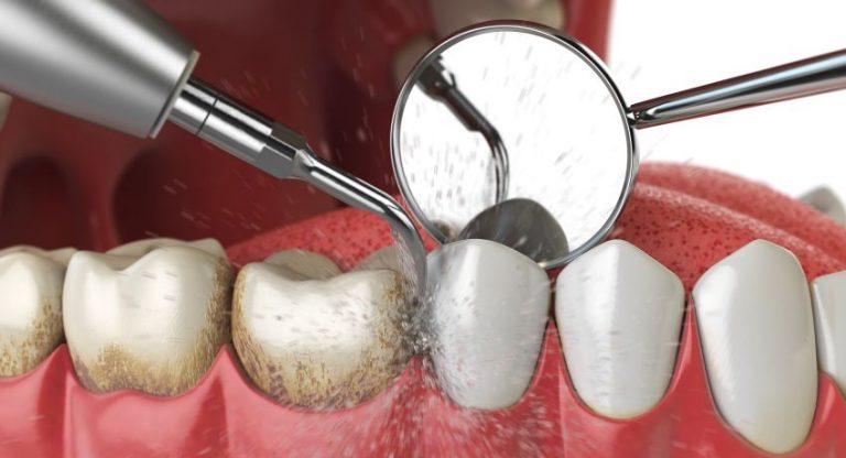 Detartrajul dentar – ce probleme apar dacă nu mergi la dentist pentru îndepărtarea tartrului