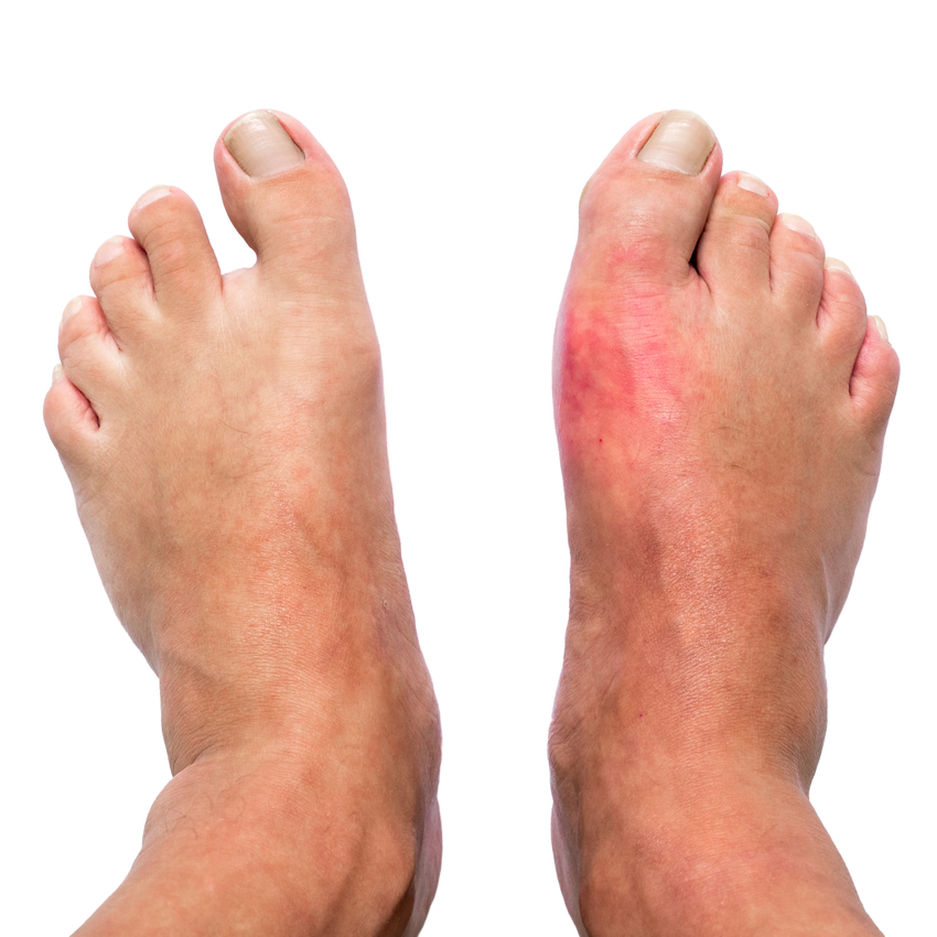 Guta: simptome, cauze, tratament
