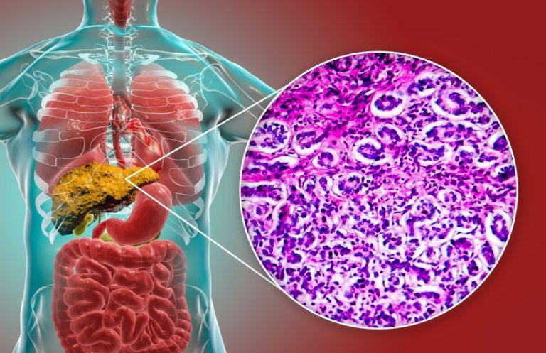 Ficatul gras (steatoza hepatică). Ce boli poți face dacă nu urmezi tratament