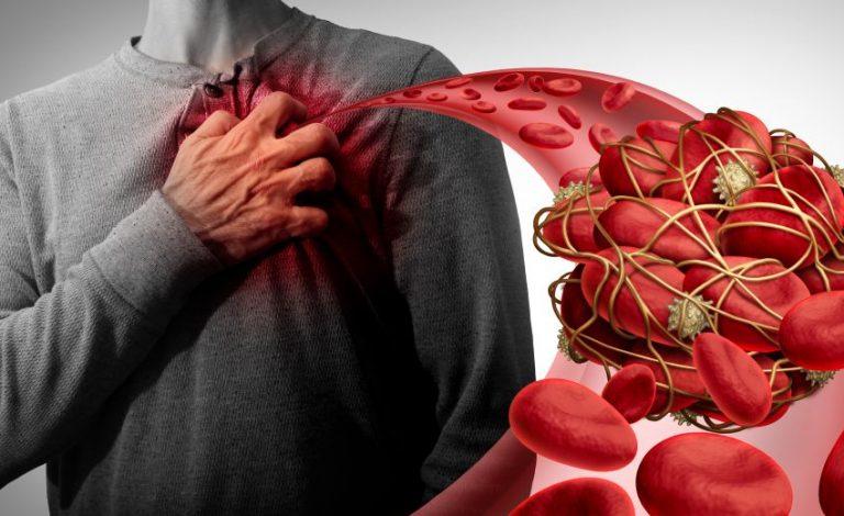 10 alimente și suplimente care subțiază sângele și reduc riscul de cheaguri