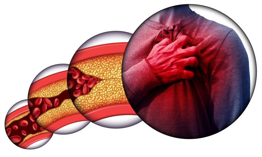 îndepărtați arterele de grăsime