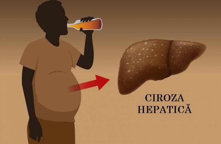 Dieta în ciroza hepatică - alimente permise și interzise