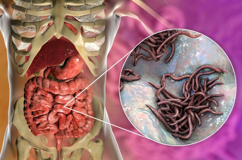 Cum poţi scăpa de viermii intestinali. - Cum să vezi viermi