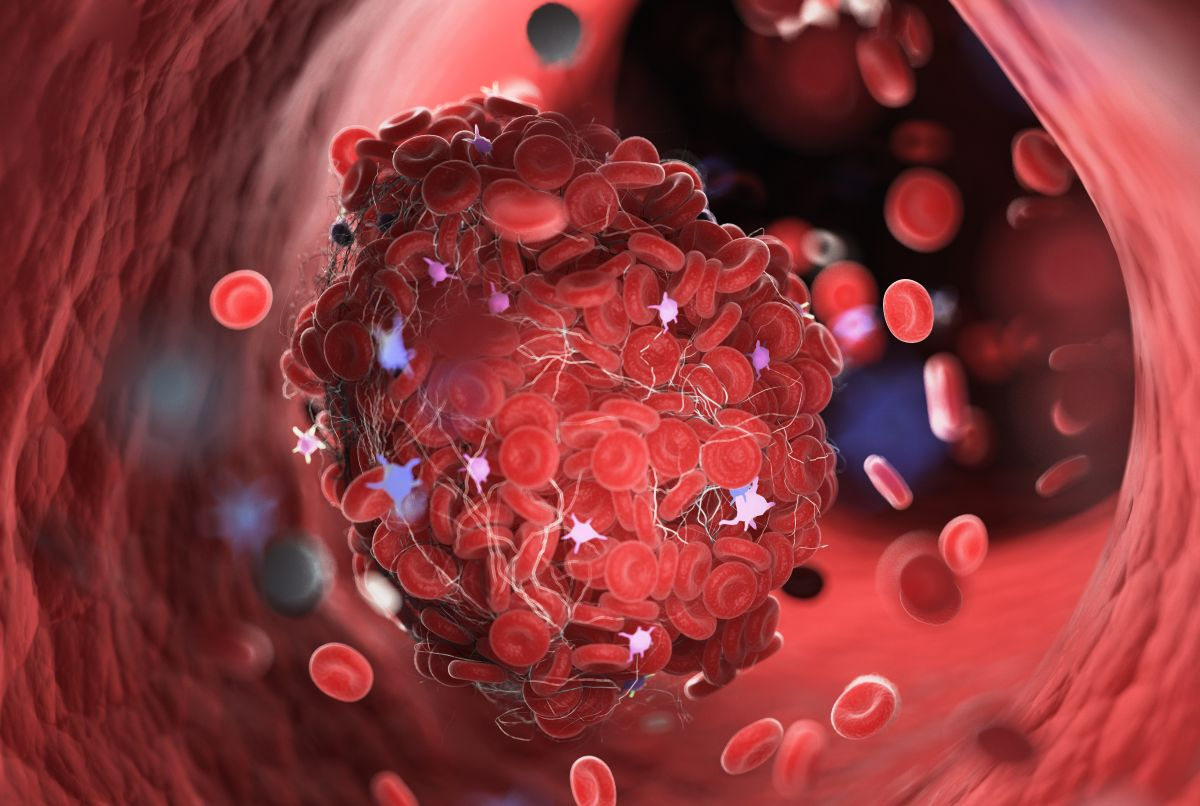 Trombofilia nu este o boală, ci un factor de risc în apariția cheagurilor de sânge